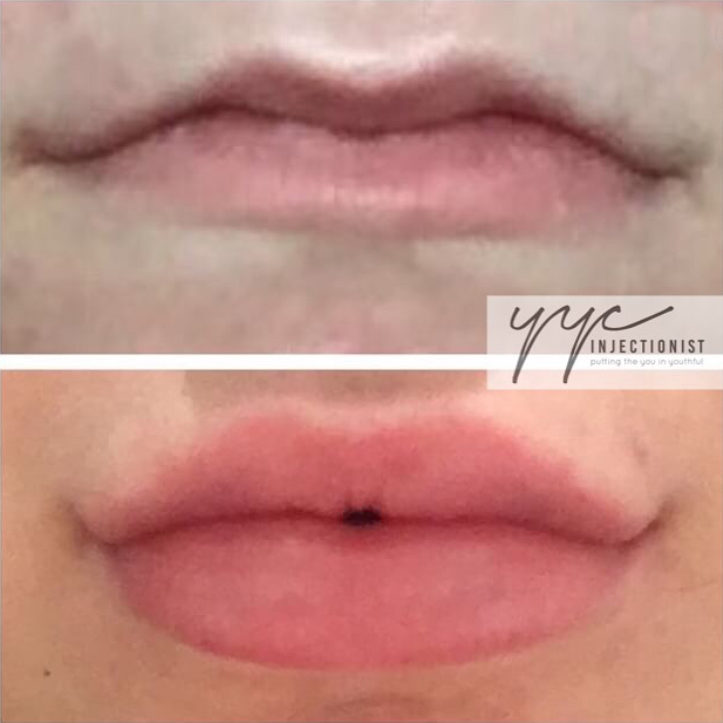 Calgary Lip Fillers That Give You That Luscious Look | YYC Injectionist