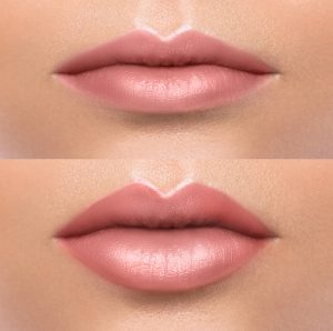 Comparison of female lips after augmentation
