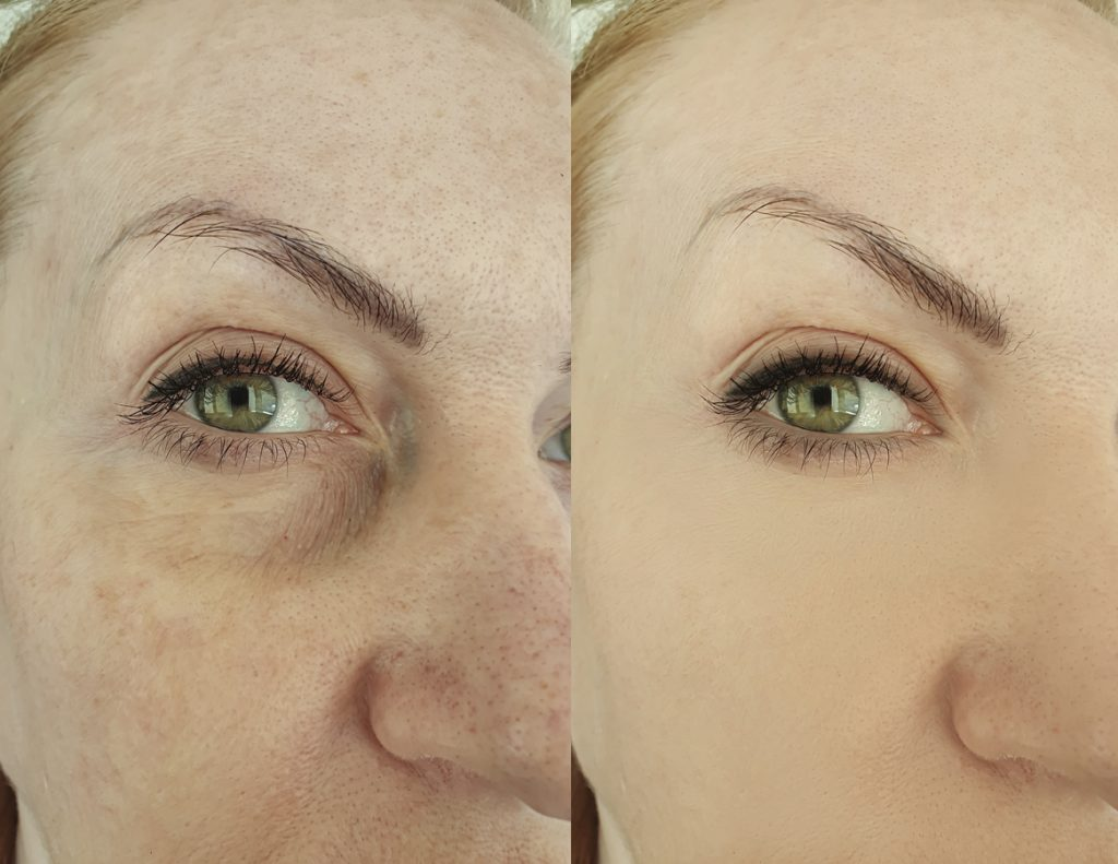 woman eye wrinkles before and after treatment, blephroplasty